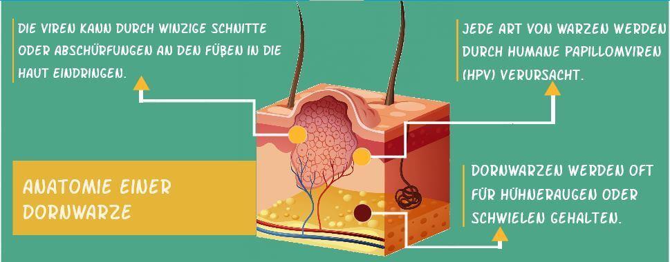 Dornwarzen – Ursachen, Entfernung & Heilung